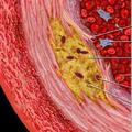 Холестерол - модел